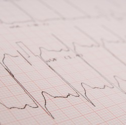 Image of an ECG trace